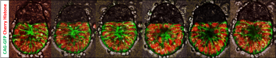 Embryonic Cells expressing GFP & cherry histone