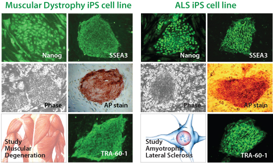 iPS Cell Lines